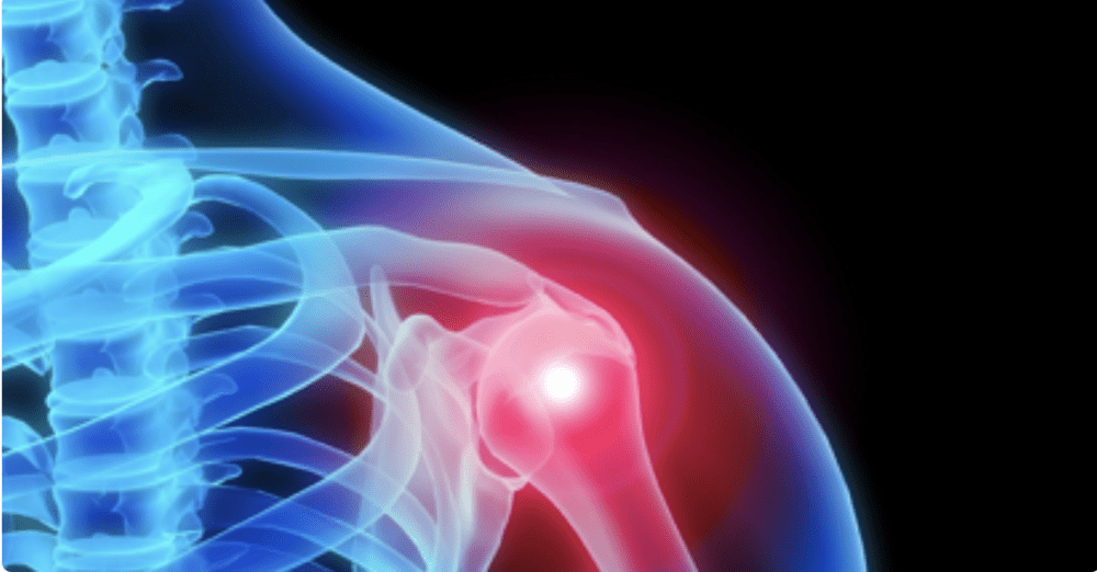 STEM CELL THERAPY FOR SHOULDER PAIN